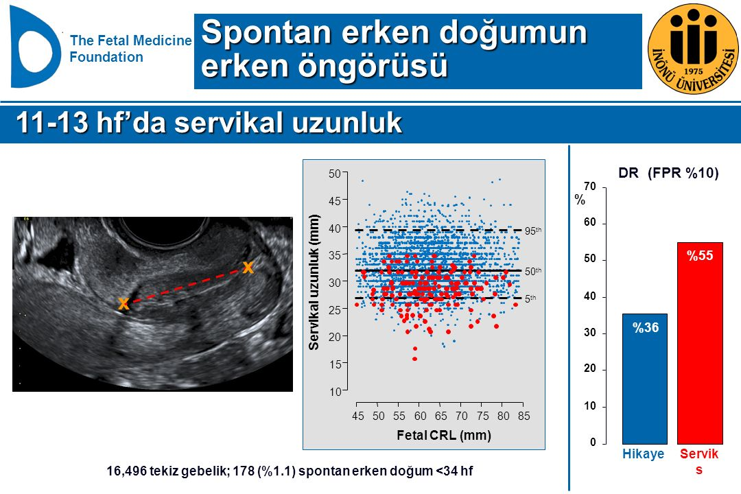 The Fetal Medicine Foundation 455055606570758085 10 15 20 25 30 35 40 45 50 Fetal CRL (mm) Servikal uzunluk (mm) 50 th 5 th 95 th 16,496 tekiz gebelik