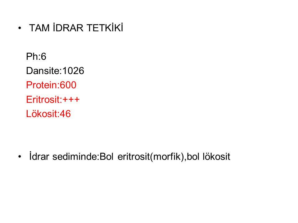 TAM İDRAR TETKİKİ Ph:6 Dansite:1026 Protein:600 Eritrosit:+++ Lökosit:46 İdrar sediminde:Bol eritrosit(morfik),bol lökosit
