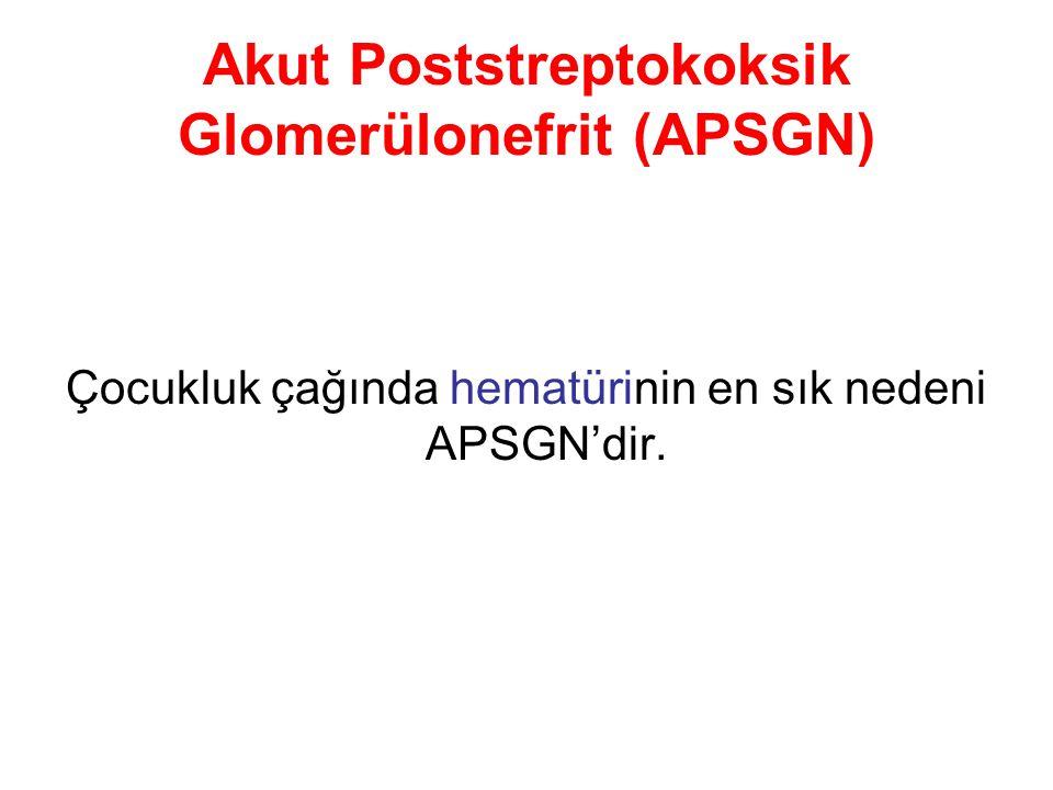 Akut Poststreptokoksik Glomerülonefrit (APSGN) Çocukluk çağında hematürinin en sık nedeni APSGN'dir.