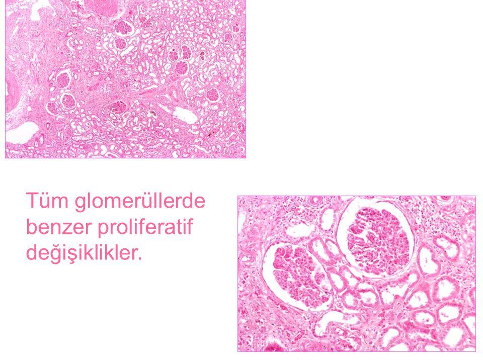 Tüm glomerüllerde benzer proliferatif değişiklikler.