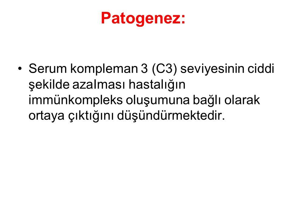 Patogenez: Serum kompleman 3 (C3) seviyesinin ciddi şekilde azaIması hastalığın immünkompleks oluşumuna bağlı olarak ortaya çıktığını düşündürmektedir.