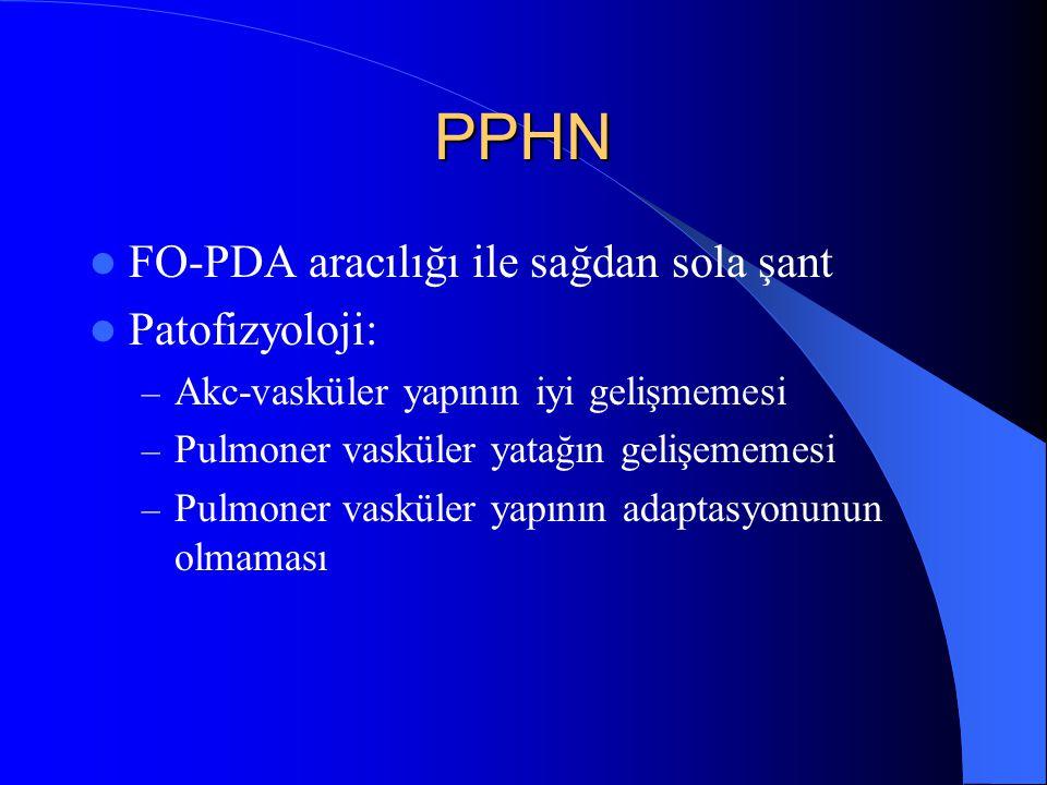 PPHN FO-PDA aracılığı ile sağdan sola şant Patofizyoloji: – Akc-vasküler yapının iyi gelişmemesi – Pulmoner vasküler yatağın gelişememesi – Pulmoner v