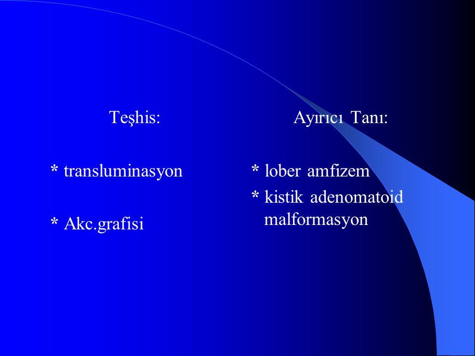 Teşhis: * transluminasyon * Akc.grafisi Ayırıcı Tanı: * lober amfizem * kistik adenomatoid malformasyon