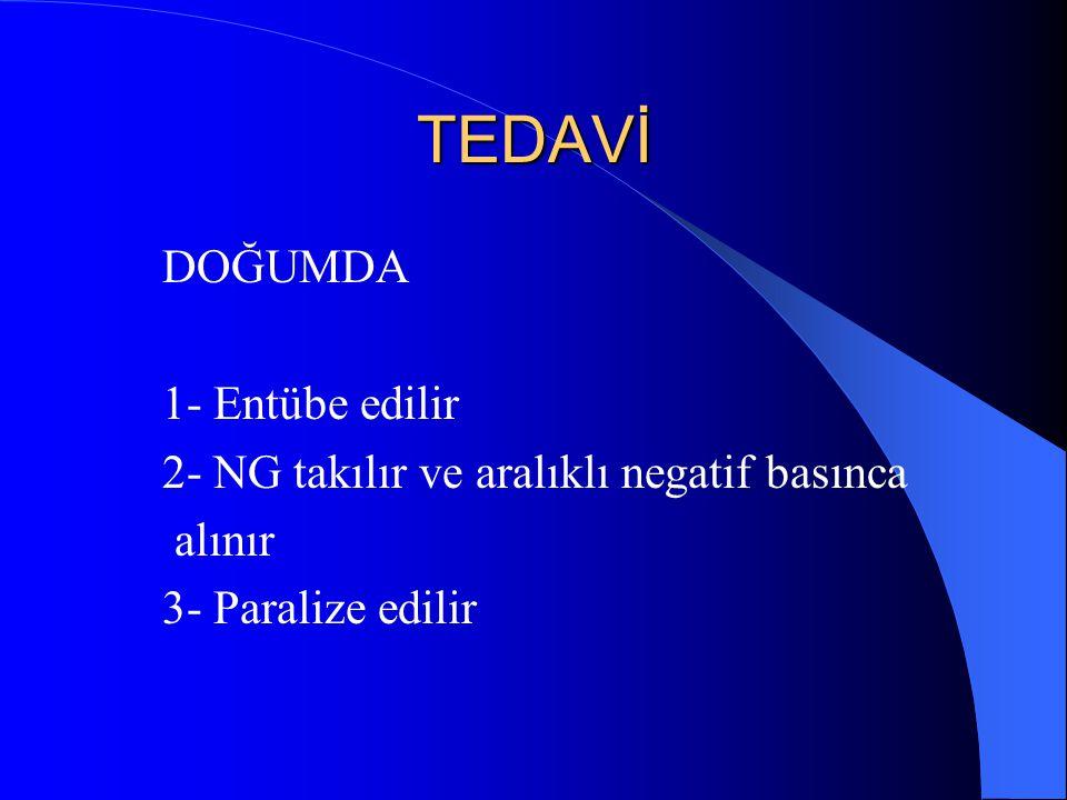 TEDAVİ DOĞUMDA 1- Entübe edilir 2- NG takılır ve aralıklı negatif basınca alınır 3- Paralize edilir