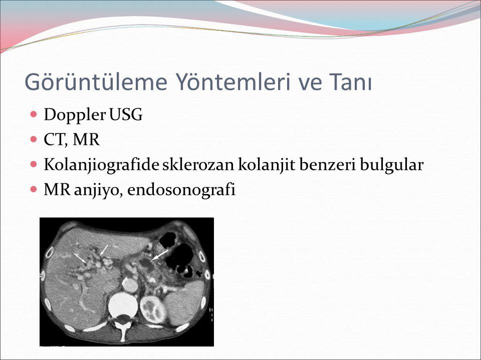 Görüntüleme Yöntemleri ve Tanı Doppler USG CT, MR Kolanjiografide sklerozan kolanjit benzeri bulgular MR anjiyo, endosonografi
