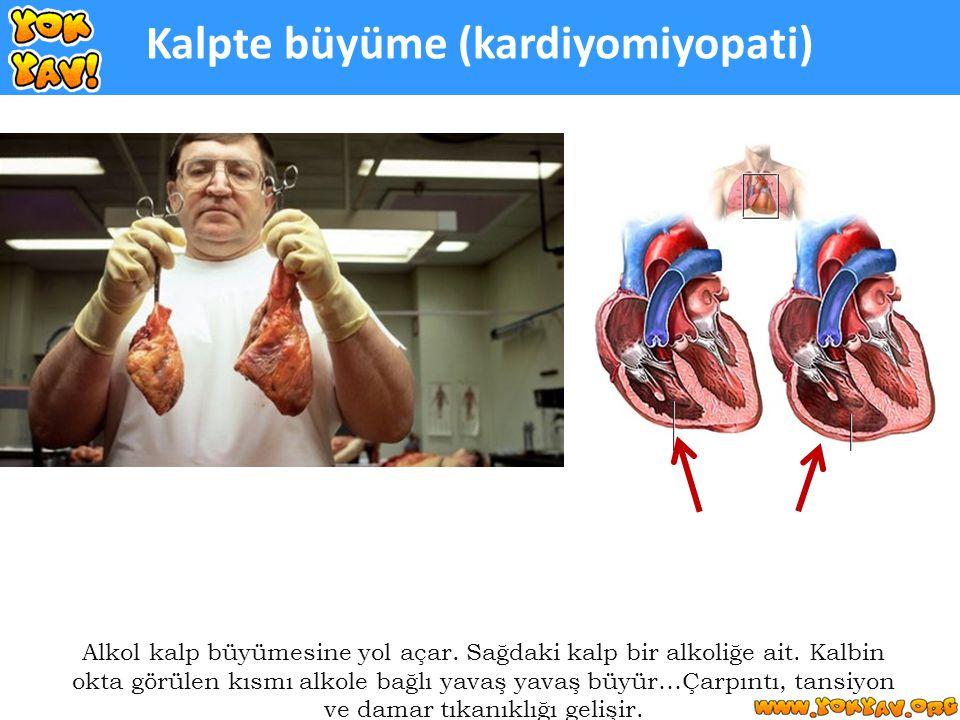 Kalpte büyüme (kardiyomiyopati) Alkol kalp büyümesine yol açar.