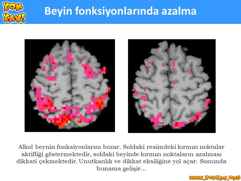 Beyin fonksiyonlarında azalma Alkol beynin fonksiyonlarını bozar.