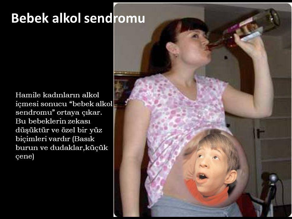 Bebek alkol sendromu Hamile kadınların alkol içmesi sonucu bebek alkol sendromu ortaya çıkar.