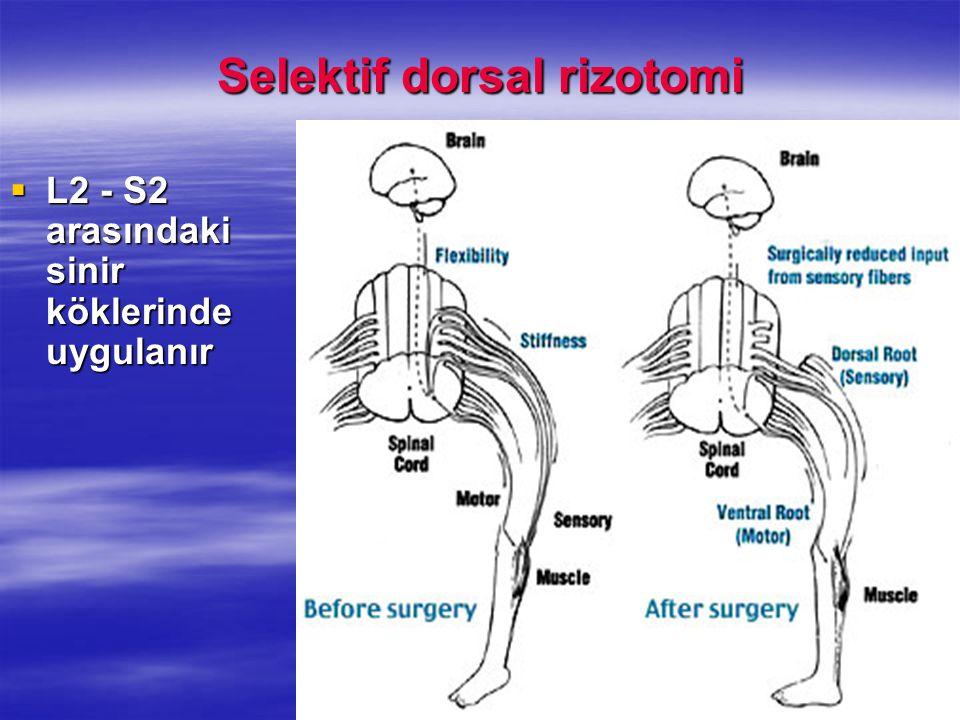 Selektif dorsal rizotomi  L2 - S2 arasındaki sinir köklerinde uygulanır