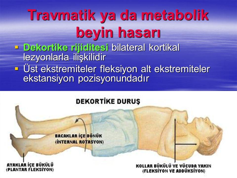 Travmatik ya da metabolik beyin hasarı  Dekortike rijiditesi bilateral kortikal lezyonlarla ilişkilidir  Üst ekstremiteler fleksiyon alt ekstremitel