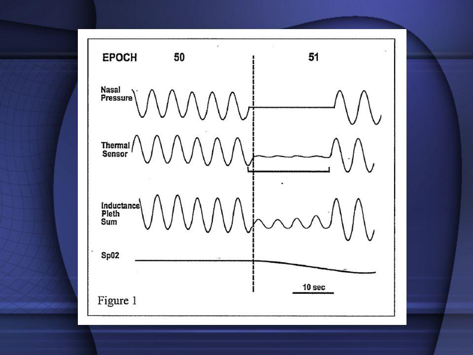l Apne: Oro-nazal termal sensör Hava akımını indirekt ve kalitatif olarak ölçer Ağız ve burundan gelen havanın ısı farklılıklarını belirleyerek apneyi saptar Teknik Öneriler