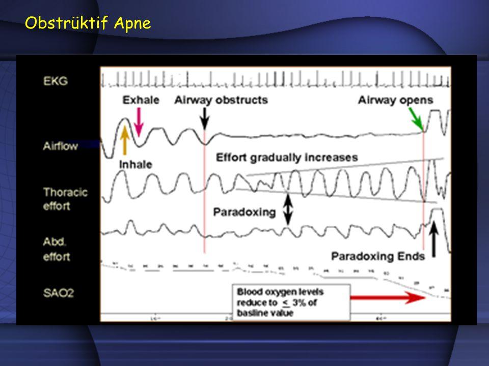 l Hipopne: İntranazal basınç ölçer Teknik Öneriler