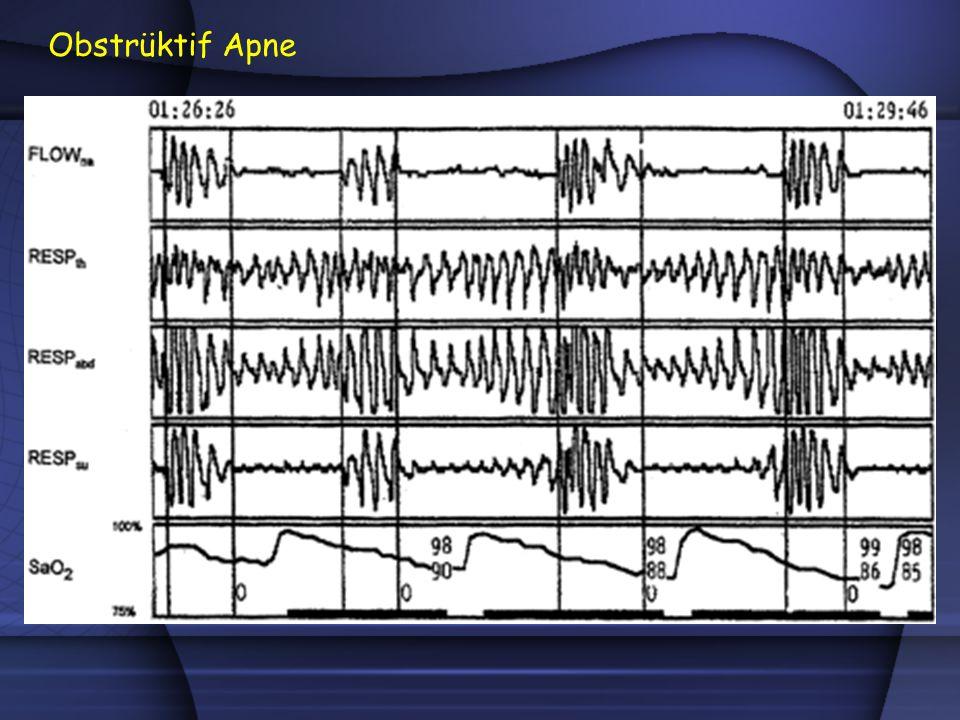 l Solunum çabası: Özofagus manometresi veya respiratuar indüktans pletismografi (RIP) Teknik Öneriler