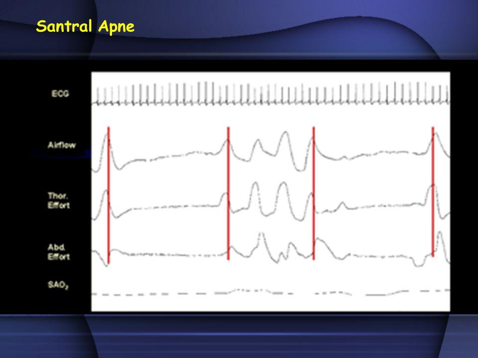 l Uyanıklık supin pozisyondaki değerine göre, uyku sırasında PaCO 2 'de ≥10 mmHg'lık artış Hipoventilasyon Kuralı