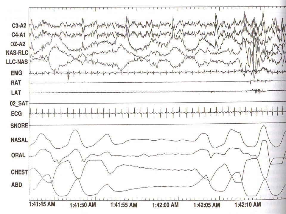 lSolunum amplitüdünde, en az 3 ardışık kreşendo-dekreşendo siklusunun izlenmesi ve aşağıdakilerden en az birinin varlığı lUyku saati başına en az 5 apne veya hipopne lBu siklusun en az ardışık 10 dk.