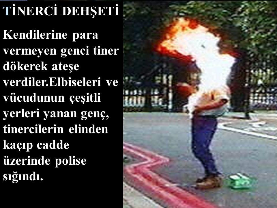 TİNERCİ DEHŞETİ Kendilerine para vermeyen genci tiner dökerek ateşe verdiler.Elbiseleri ve vücudunun çeşitli yerleri yanan genç, tinercilerin elinden kaçıp cadde üzerinde polise sığındı.