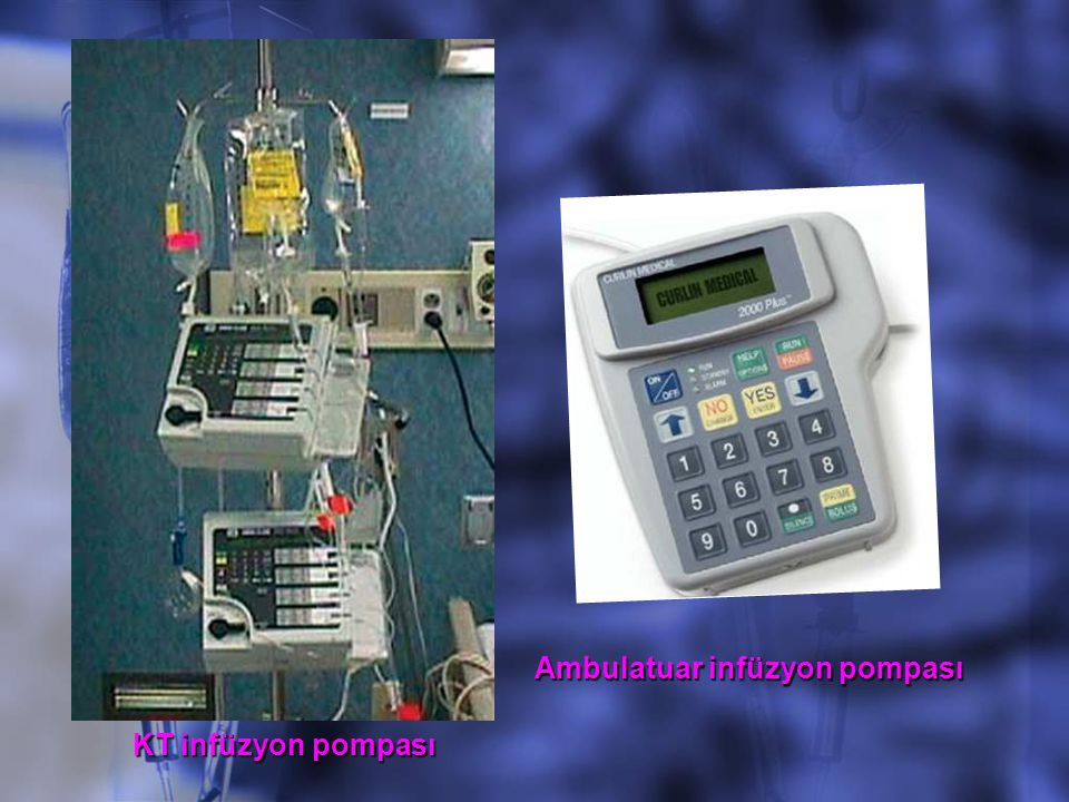 KT infüzyon pompası Ambulatuar infüzyon pompası