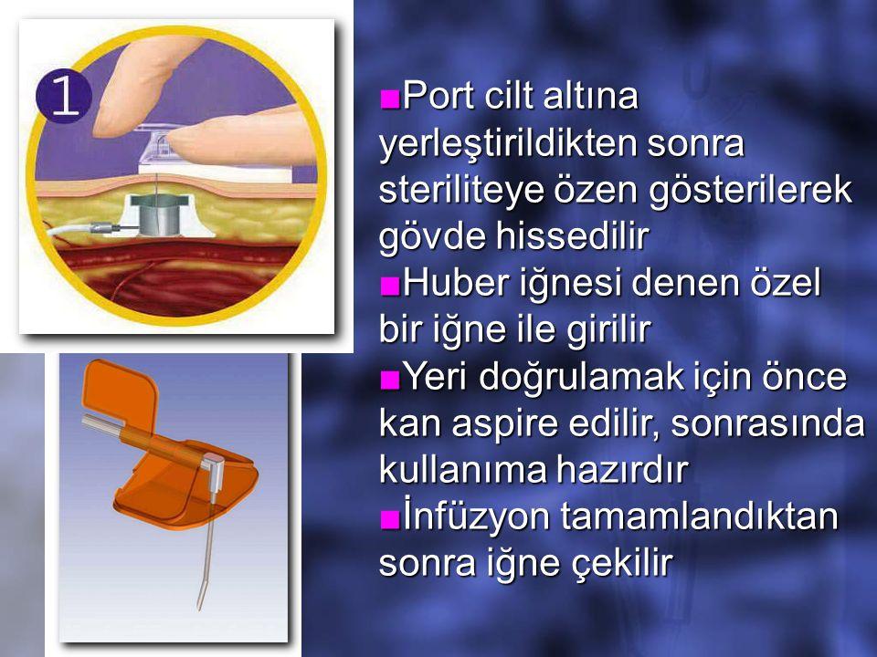 ■Port cilt altına yerleştirildikten sonra steriliteye özen gösterilerek gövde hissedilir ■Huber iğnesi denen özel bir iğne ile girilir ■Yeri doğrulamak için önce kan aspire edilir, sonrasında kullanıma hazırdır ■İnfüzyon tamamlandıktan sonra iğne çekilir