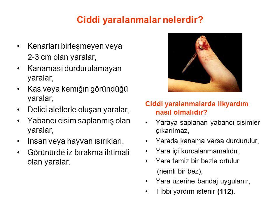 Ciddi yaralanmalar nelerdir? Kenarları birleşmeyen veya 2-3 cm olan yaralar, Kanaması durdurulamayan yaralar, Kas veya kemiğin göründüğü yaralar, Deli