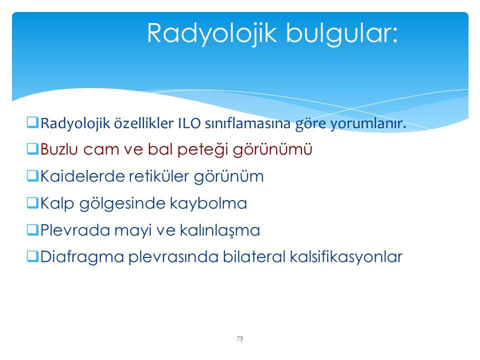  Radyolojik özellikler ILO sınıflamasına göre yorumlanır.  Buzlu cam ve bal peteği görünümü  Kaidelerde retiküler görünüm  Kalp gölgesinde kaybolm
