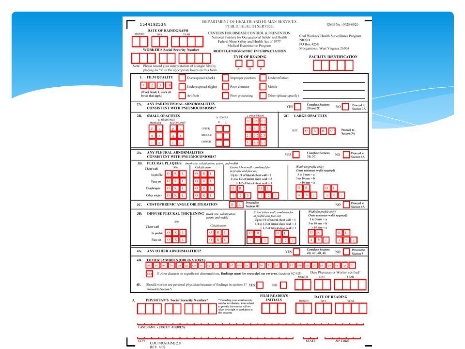 100 ILO - Pnömokonyoz opasitelerinin radyolojik sınıflaması
