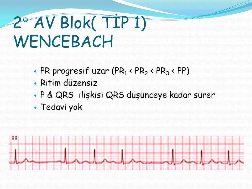 2° AV Blok( TİP 1) WENCEBACH PR progresif uzar (PR 1 < PR 2 < PR 3 < PP) Ritim düzensiz P & QRS ilişkisi QRS düşünceye kadar sürer Tedavi yok