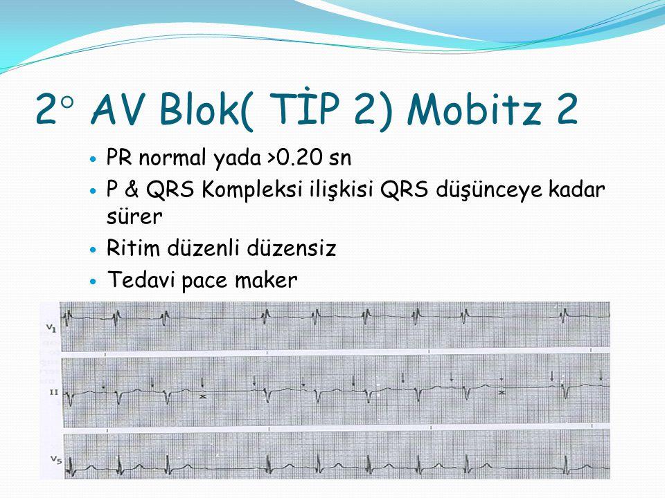 3° AV Blok( TAM BLOK) P'ler kendi arasında QRS'ler kendi arasında düzenli Ritim düzenli P & QRS ilişkisi yok Tedavi pacemaker