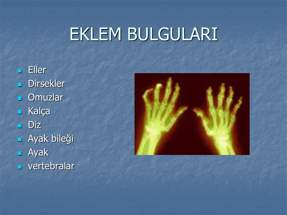 EKLEM BULGULARI Eller Eller Dirsekler Dirsekler Omuzlar Omuzlar Kalça Kalça Diz Diz Ayak bileği Ayak bileği Ayak Ayak vertebralar vertebralar