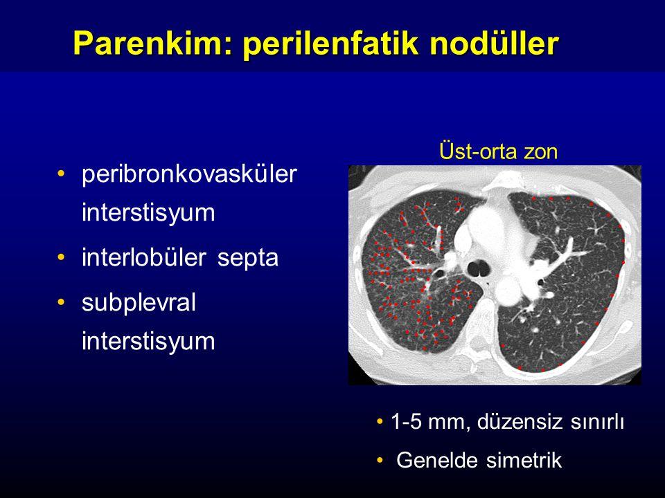 peribronkovasküler interstisyum interlobüler septa subplevral interstisyum Parenkim: perilenfatik nodüller 1-5 mm, düzensiz sınırlı Genelde simetrik Ü