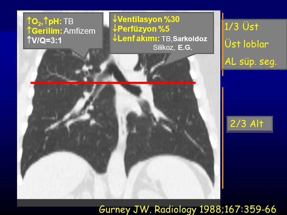  O 2,  pH: TB  Gerilim: Amfizem  V/Q=3:1  Ventilasyon %30  Perfüzyon %5  Lenf akımı: TB,Sarkoidoz Silikoz, E.G. 1/3 Üst Üst loblar AL süp. seg.