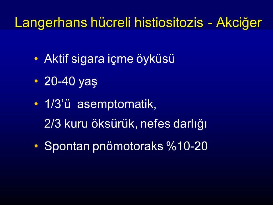 Langerhans hücreli histiositozis - Akciğer Aktif sigara içme öyküsü 20-40 yaş 1/3'ü asemptomatik, 2/3 kuru öksürük, nefes darlığı Spontan pnömotoraks