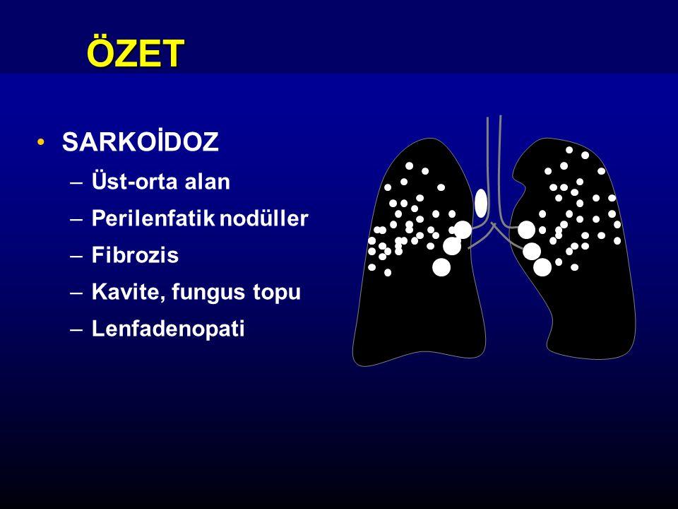ÖZET SARKOİDOZ –Üst-orta alan –Perilenfatik nodüller –Fibrozis –Kavite, fungus topu –Lenfadenopati