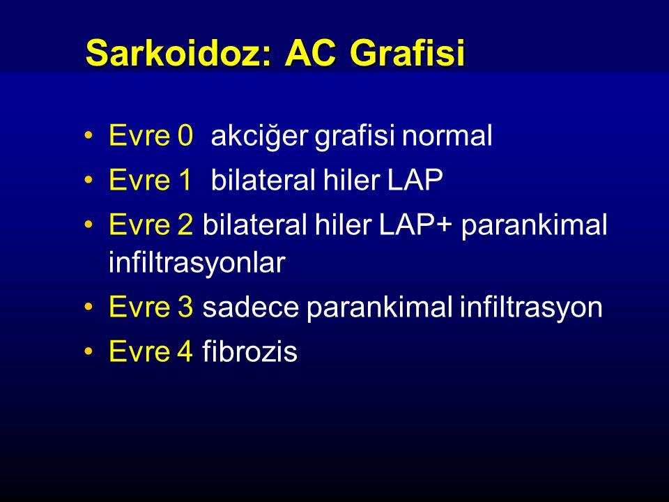 Sarkoidoz: AC Grafisi Evre 0 akciğer grafisi normal Evre 1 bilateral hiler LAP Evre 2 bilateral hiler LAP+ parankimal infiltrasyonlar Evre 3 sadece pa