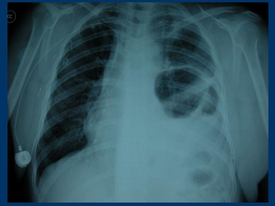 Künt Travmada: Sol tarafta daha fazladır.Daha çok dalak ve abdominal aorta arasında 1.