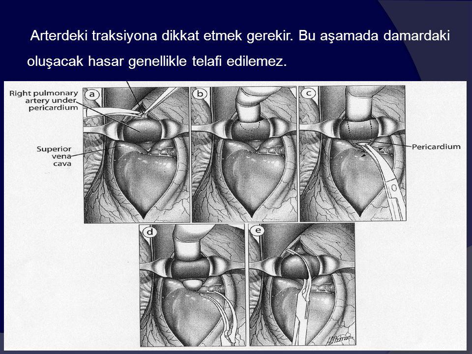 Arterdeki traksiyona dikkat etmek gerekir. Bu aşamada damardaki oluşacak hasar genellikle telafi edilemez.