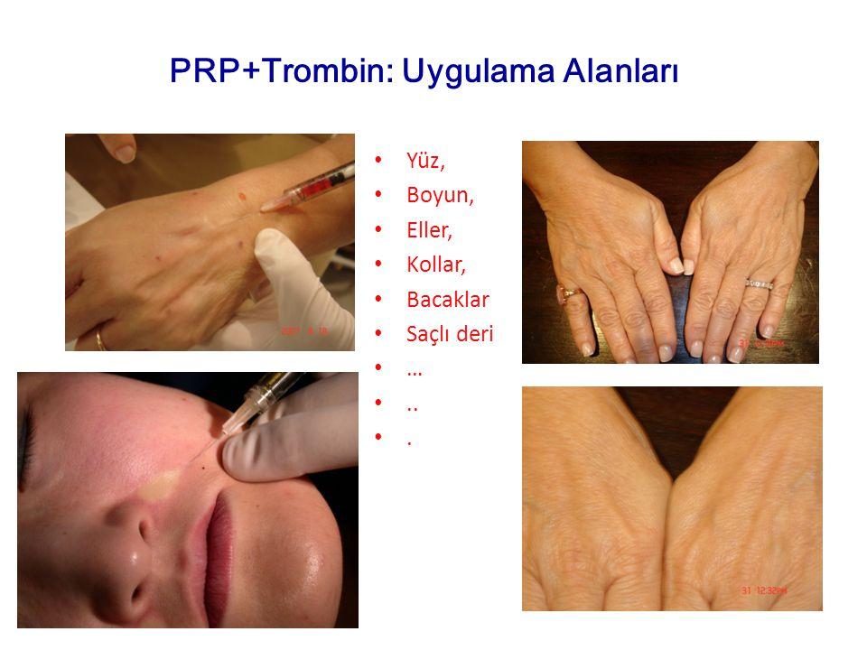 Yüz, Boyun, Eller, Kollar, Bacaklar Saçlı deri …... PRP+Trombin: Uygulama Alanları