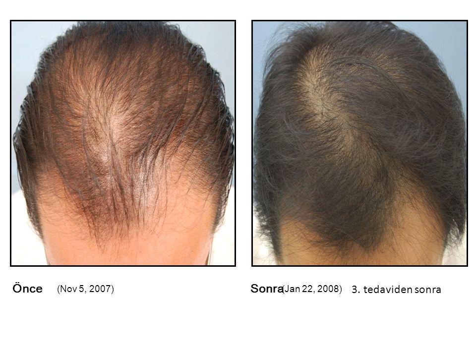 ÖnceSonra (Nov 5, 2007)(Jan 22, 2008) 3. tedaviden sonra