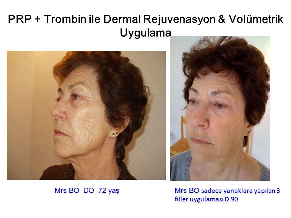 PRP + Trombin ile Dermal Rejuvenasyon & Volümetrik Uygulama Mrs BO DO 72 yaş Mrs BO sadece yanaklara yapılan 3 filler uygulaması D 90