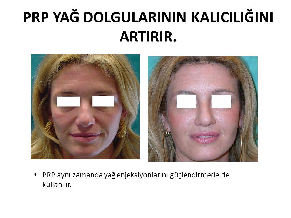 PRP YAĞ DOLGULARININ KALICILIĞINI ARTIRIR. PRP aynı zamanda yağ enjeksiyonlarını güçlendirmede de kullanılır.