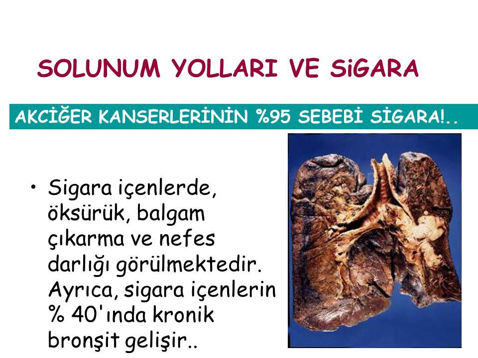 Sigara içenlerde, öksürük, balgam çıkarma ve nefes darlığı görülmektedir. Ayrıca, sigara içenlerin % 40'ında kronik bronşit gelişir.. AKCİĞER KANSERLE