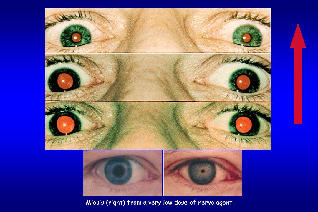Muskarinik etkiler  Göz bebeklerinde küçülme (miyosis),  Burun akıntısı (rinore), gözlerde yaşarma (lakrimasyon),  Bronş salgılarında artış,  Aşır