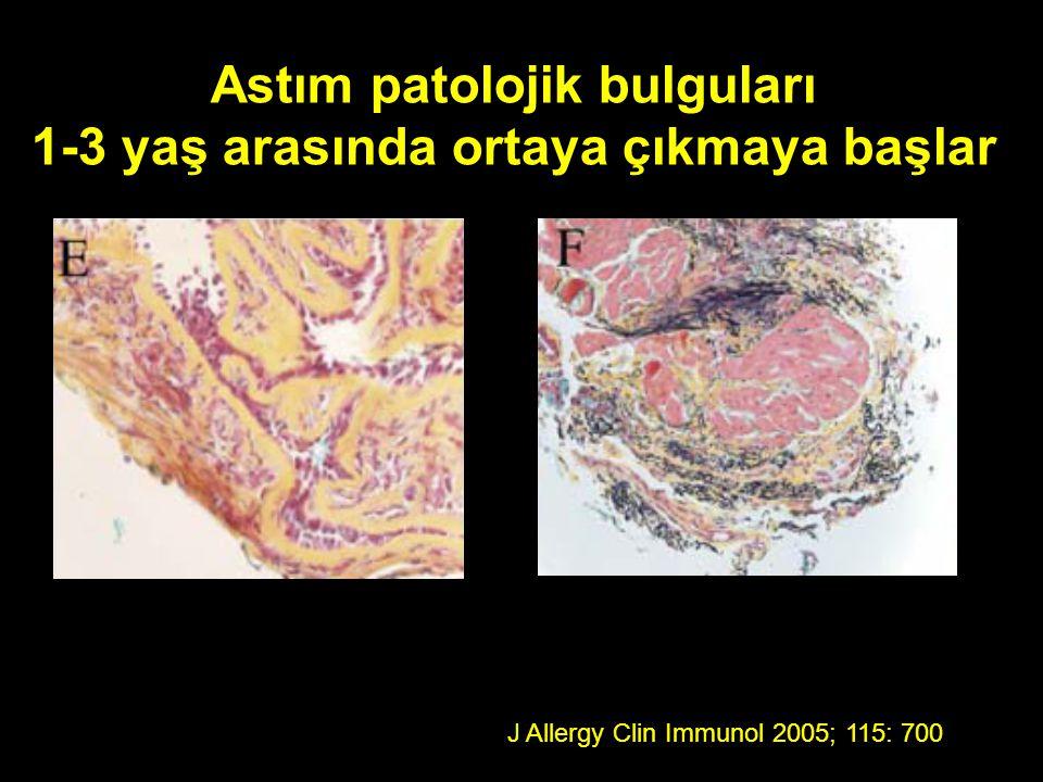 Astım patolojik bulguları 1-3 yaş arasında ortaya çıkmaya başlar J Allergy Clin Immunol 2005; 115: 700