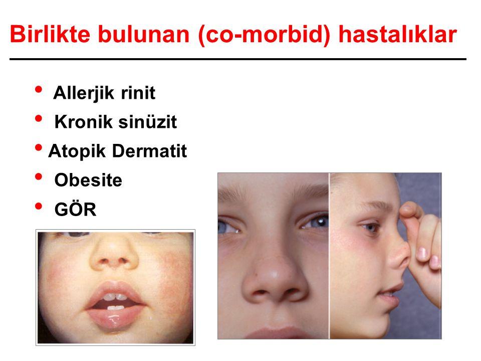 Birlikte bulunan (co-morbid) hastalıklar Allerjik rinit Kronik sinüzit Atopik Dermatit Obesite GÖR