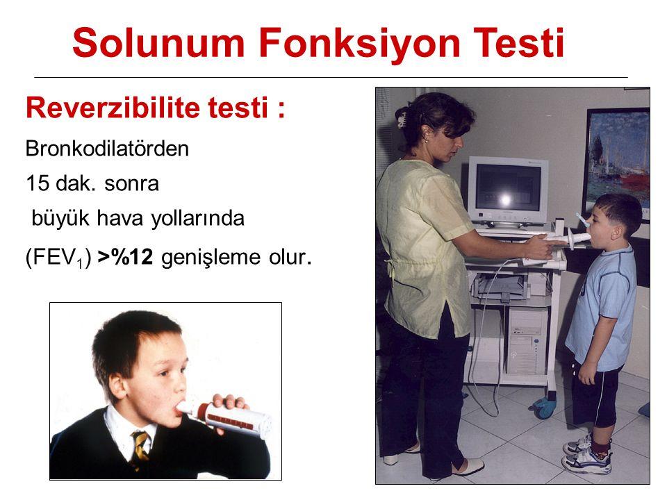 Solunum Fonksiyon Testi Reverzibilite testi : Bronkodilatörden 15 dak. sonra büyük hava yollarında (FEV 1 ) >%12 genişleme olur.