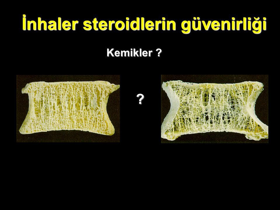 İnhaler steroidlerin güvenirliği Kemikler ? ?