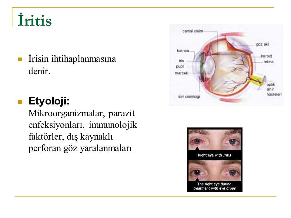 İritis İrisin ihtihaplanmasına denir. Etyoloji: Mikroorganizmalar, parazit enfeksiyonları, immunolojik faktörler, dış kaynaklı perforan göz yaralanmal