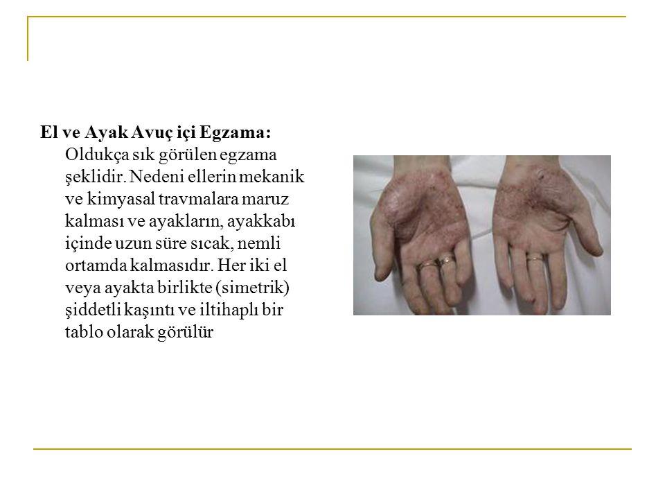 El ve Ayak Avuç içi Egzama: Oldukça sık görülen egzama şeklidir. Nedeni ellerin mekanik ve kimyasal travmalara maruz kalması ve ayakların, ayakkabı iç