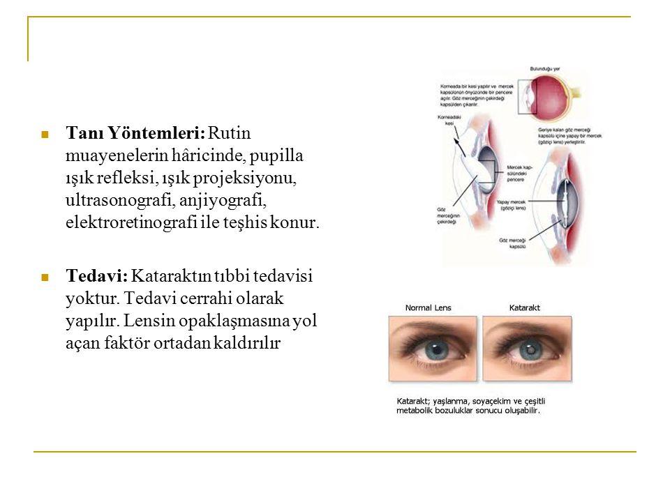 Tanı Yöntemleri: Rutin muayenelerin hâricinde, pupilla ışık refleksi, ışık projeksiyonu, ultrasonografi, anjiyografi, elektroretinografi ile teşhis ko