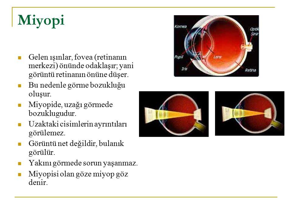 Miyopi Gelen ışınlar, fovea (retinanın merkezi) önünde odaklaşır; yani görüntü retinanın önüne düşer. Bu nedenle görme bozukluğu oluşur. Miyopide, uza