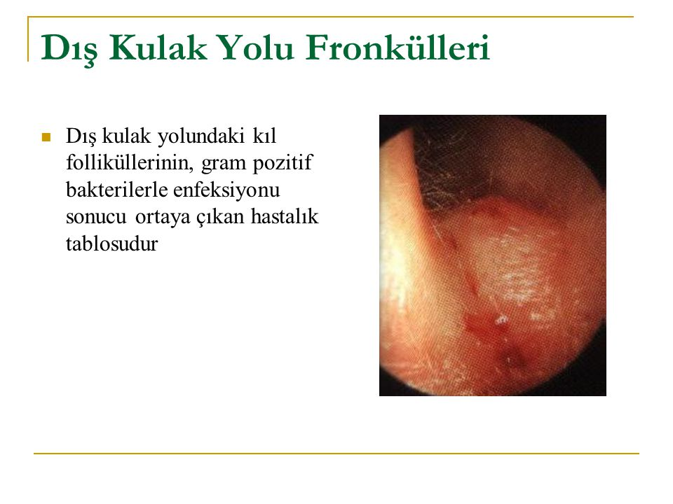 Dış Kulak Yolu Fronkülleri Dış kulak yolundaki kıl folliküllerinin, gram pozitif bakterilerle enfeksiyonu sonucu ortaya çıkan hastalık tablosudur